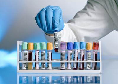 Implantación ISO 15189 en los laboratorios clínicos del Servicio Aragonés de Salud