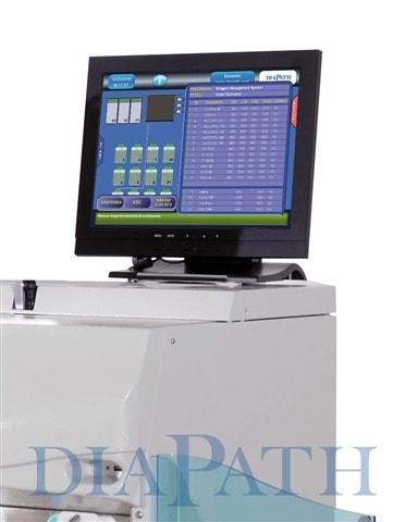 Sistema de Gestión de los Reactivos del Procesador Donatello